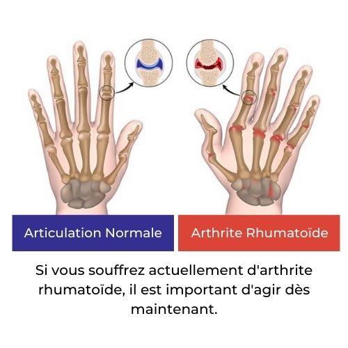 déformation des articulations mains