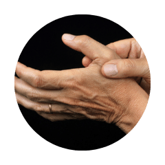 douleurs constantes - arthrose de la main