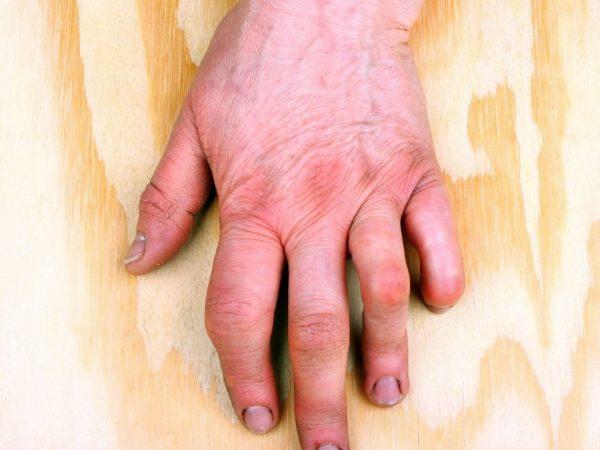 arthrose des mains - gonflement